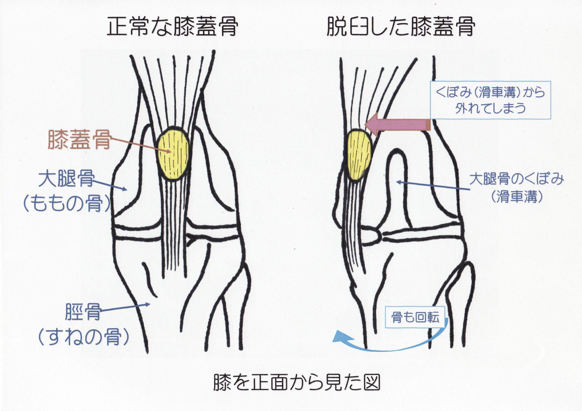正常な膝蓋骨と脱臼した膝蓋骨の図