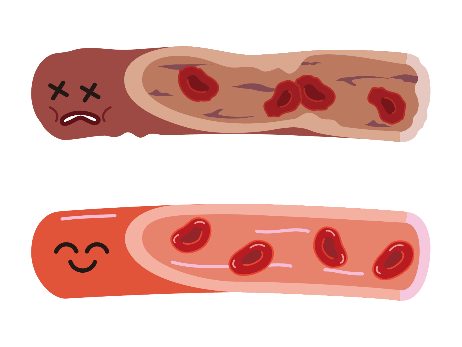 健康な血管と傷んだ血管